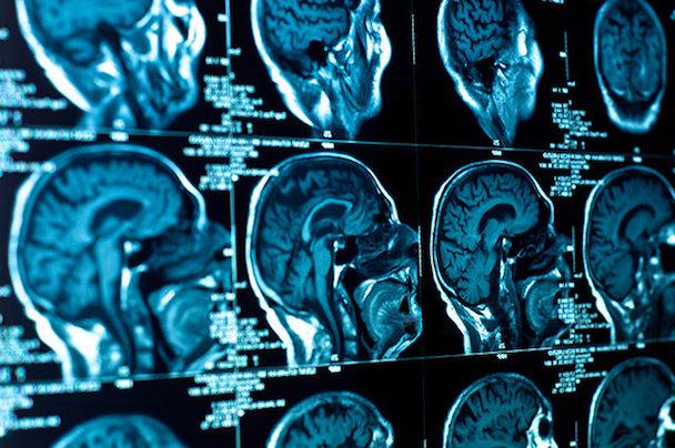 3021561-inline-675-brain