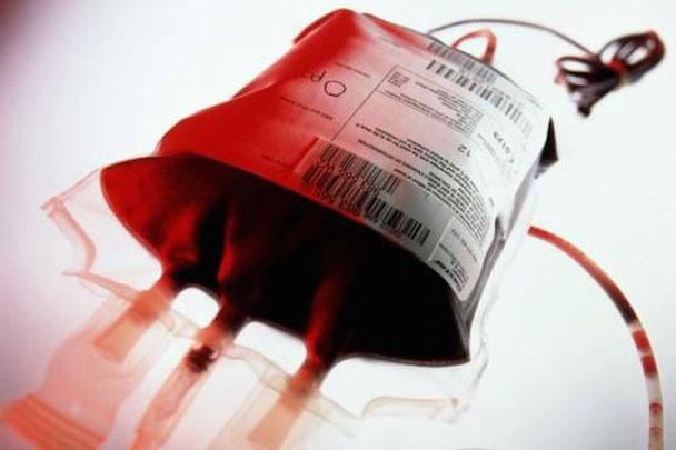 anemia-aplastica210912