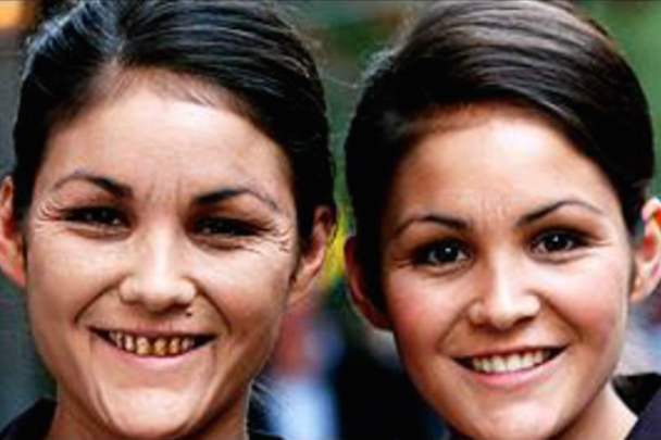 how-does-smoking-age-the-faces-of-identical-twins-1583347305-nov-14-2013-1-600x400