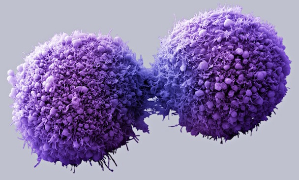 Pancreatic cancer cells